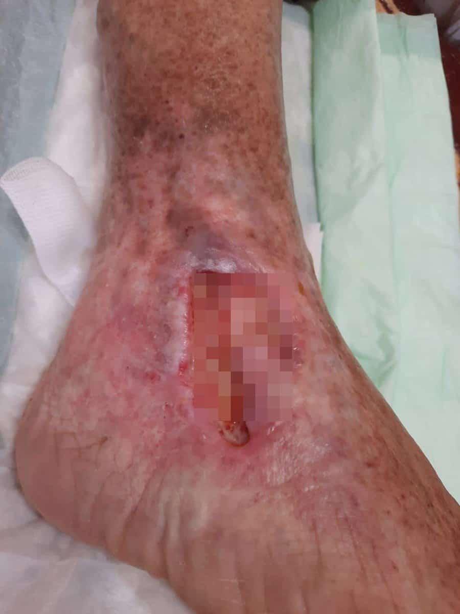 rani varice pacient covid 2