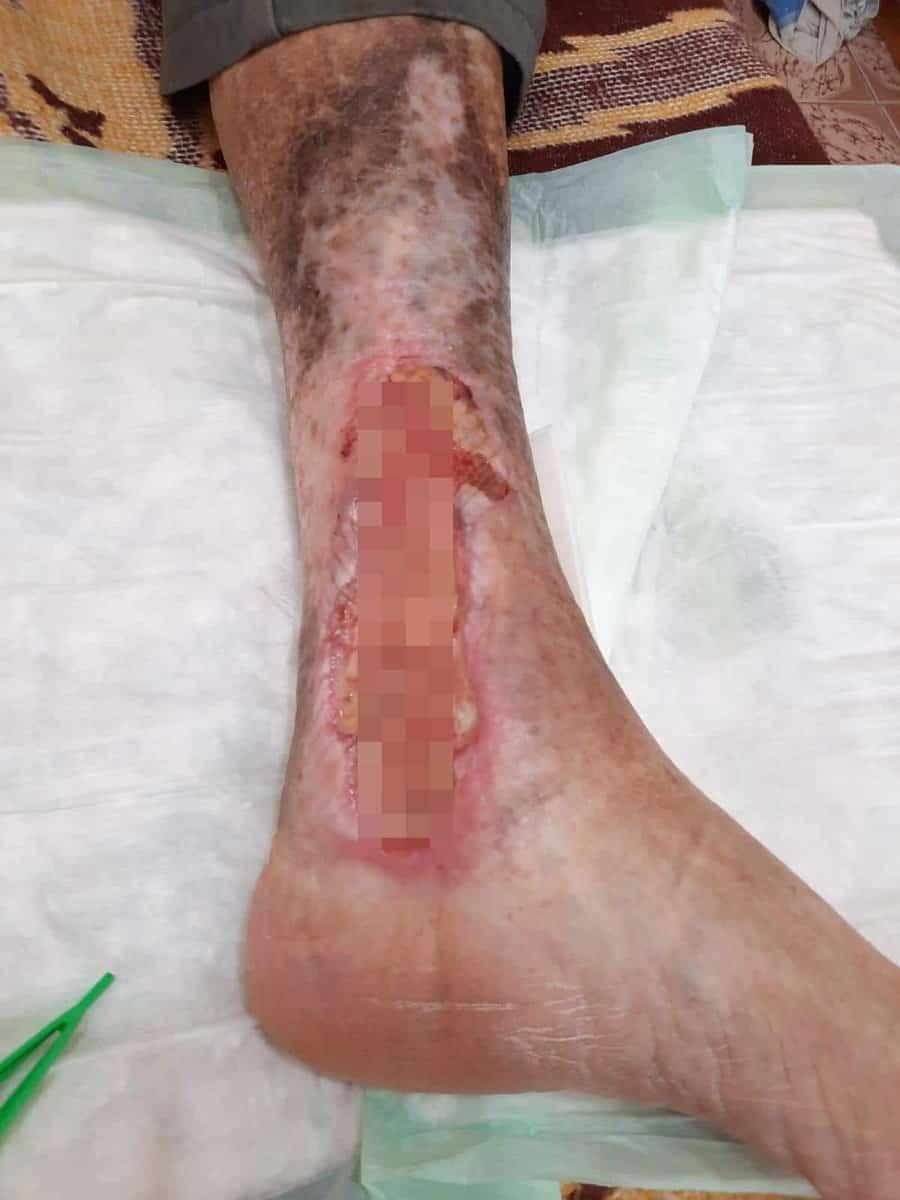 rani varice pacient covid 3